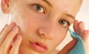 acne_teen_skin